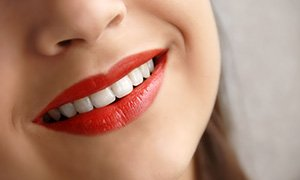 Teeth Whitening Bayonne